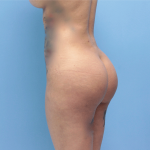 Patient 32c After Brazilian Butt Lift