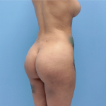 Patient 32a After Brazilian Butt Lift