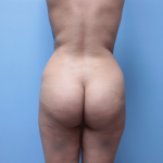 Patient 32b Before Brazilian Butt Lift