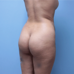 Patient 32a Before Brazilian Butt Lift
