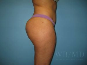 Patient 25a After Brazilian Butt Lift