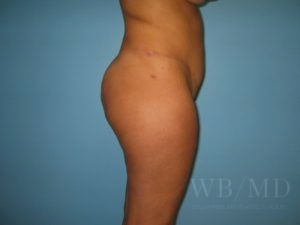 Patient 25a Before Brazilian Butt Lift