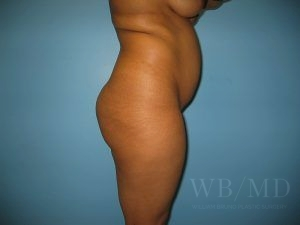 Patient 28a Before Brazilian Butt Lift