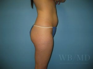 Patient 29a Before Brazilian Butt Lift