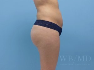 Patient 30a After Brazilian Butt Lift