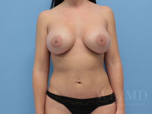 Patient 54a After Breast Augmentation