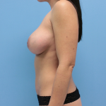 Patient 54c After Breast Augmentation