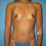 Patient 55a Before Breast Augmentation