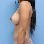 Patient 55c After Breast Augmentation