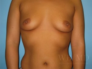 Patient 12a Before Breast Augmentation