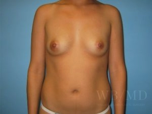 Patient 14a Before Breast Augmentation