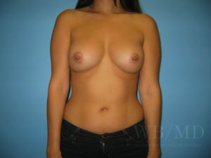 Patient 49a After Breast Augmentation