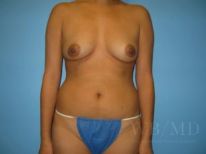 Patient 50a Before Breast Augmentation