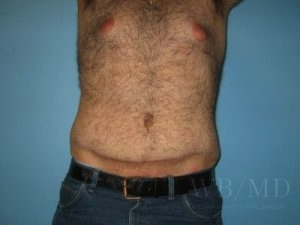Patient 13a After Tummy Tuck