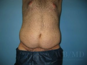 Patient 13a Before Tummy Tuck