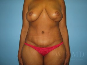 Patient 14a After Tummy Tuck