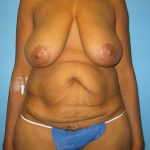 Patient 14a Before Tummy Tuck