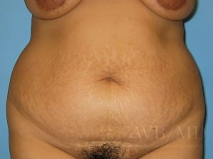 Patient 15a Before Tummy Tuck