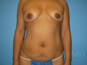 Patient 18a Before Tummy Tuck