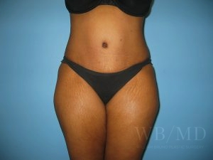 Patient 19a After Tummy Tuck