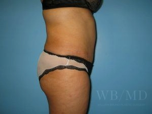 Patient 21a After Tummy Tuck
