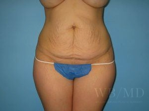 Patient 22a Before Tummy Tuck