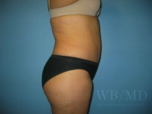 Patient 24a After Tummy Tuck