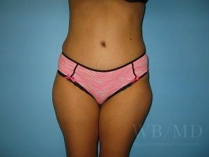 Patient 25a After Tummy Tuck