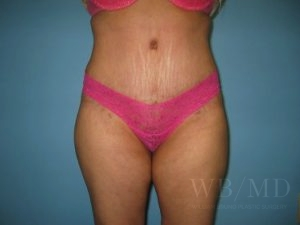 Patient 11a After Tummy Tuck