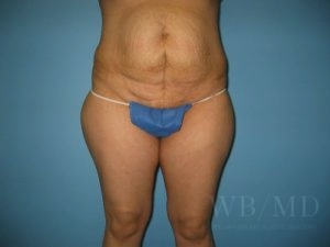 Patient 11a Before Tummy Tuck