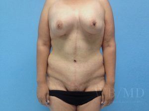 Patient 33a After Tummy Tuck