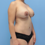 Patient 19d After Mommy Makeover