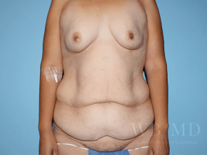 Patient 33a Before Tummy Tuck