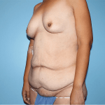 Patient 33b Before Tummy Tuck
