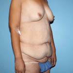 Patient 33d Before Tummy Tuck