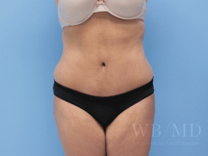 Patient 34a After Tummy Tuck