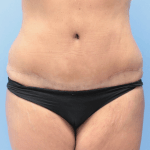 Patient 34f After Tummy Tuck