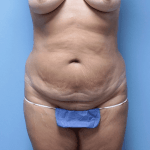 Patient 34a Before Tummy Tuck