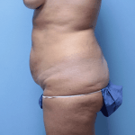 Patient 34c Before Tummy Tuck