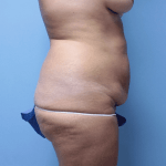 Patient 34d Before Tummy Tuck
