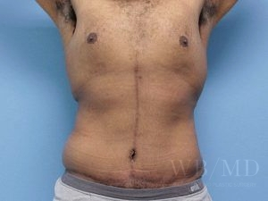 Patient 35a After Tummy Tuck