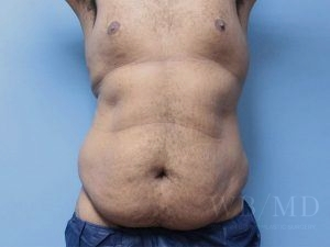 Patient 35a Before Tummy Tuck