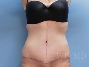 Patient 36a After Tummy Tuck