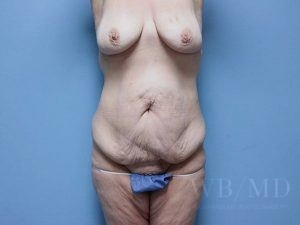 Patient 36a Before Tummy Tuck