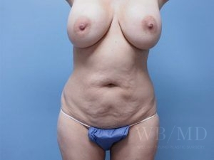 Patient 37a Before Tummy Tuck