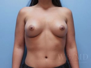 Patient 59b Before Breast Augmentation