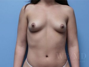 Patient 59a Before Breast Augmentation