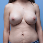 Patient 61a After Breast Augmentation