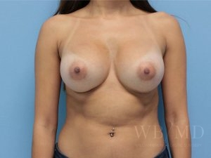 Patient 60a After Breast Augmentation