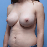 Patient 61b After Breast Augmentation